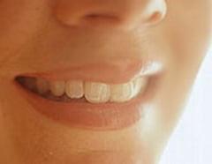 Femeile fac riduri mai multe si mai adanci in jurul gurii decat barbatii