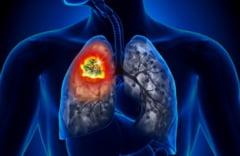 INFIORATOR. Cancerul pulmonar, cea mai mare mortalitate dintre toate formele de cancer!