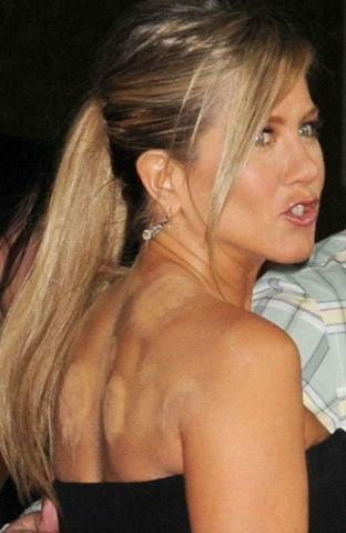 Jennifer Aniston, cu urme de ventuze la vedere, la o gala mondena