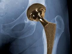 Johnson & Johnson, amenda uriasa din cauza unui implant neglijent de sold