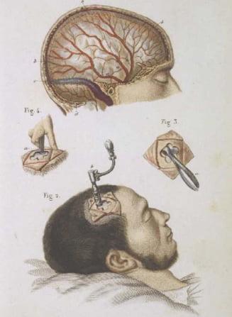 Lobotomia, istoria unei interventii controversate - Cazuri de pacienti celebri