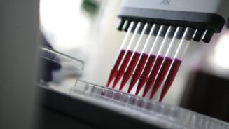 Medicii anunta o victorie majora impotriva cancerului pancreatic