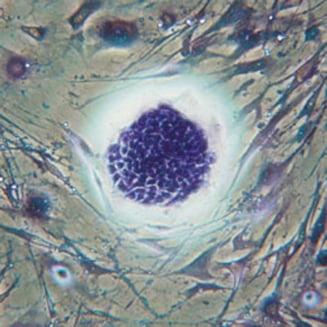 Minunile pe care le fac celulele stem pentru inima