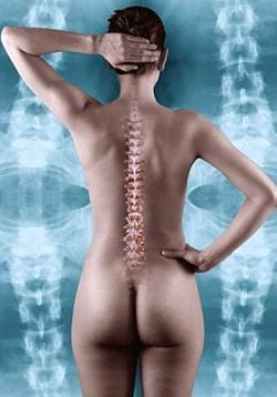 Nou tratament pentru oase casante si osteoporoza
