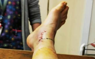 vena rănită în picior