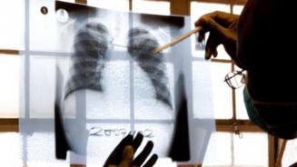 O forma misterioasa de TBC se raspandeste in Estul Europei