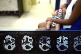 ONU, apel catre tarile afectate de virusul Zika: Asigurati accesul la contraceptie si avort