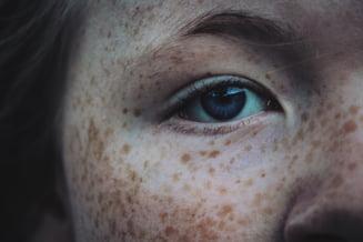 Oamenii care pot face cancer de piele chiar daca nu stau la soare