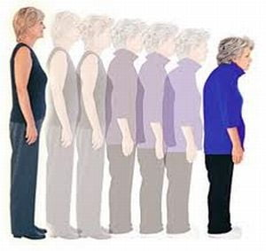 Osteoporoza, factori de risc si prevenire - Ce spune medicul