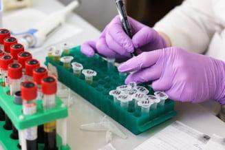 Pacientii asigurati vor putea solicita investigatii de screening pentru descoperirea precoce a bolilor