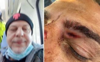 Patru politisti italieni au fost batuti crunt de un roman. Un om al legii a avut rani grave VIDEO