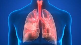 Pneumonia, boala foarte grava care, netratata, poate duce la deces. Simptomele, cauzele si factorii de risc