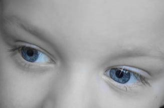 Premiera: Copii tratati de cataracta, printr-o metoda revolutionara
