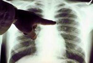 Prevenirea cancerului pulmonar - Ce spune medicul