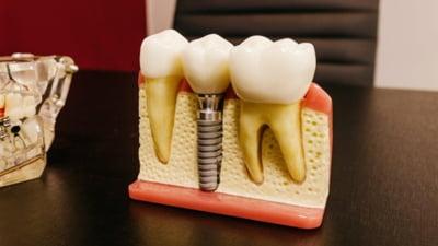 Principalele avantaje ale unui implant dentar