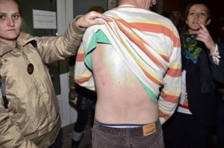 Protestatar Rosia Montana, batut de jandarmi: Am incasat cat au vrut