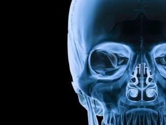 Radiografiile pot provoca leucemie copiilor