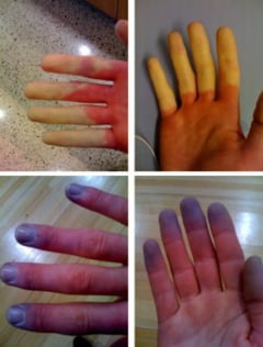 Raynaud, boala care te lasa fara maini si picioare - Ce spune medicul