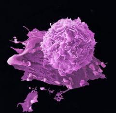 S-a descoperit o metoda revolutionara pentru combaterea cancerului