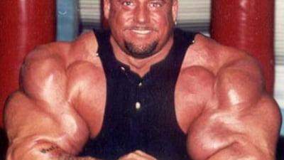 Steroid de xerostomia steroids