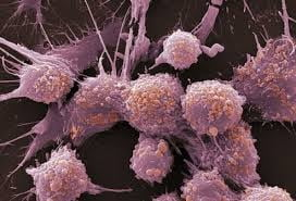 Sanse mai mari pentru cei care sufera de cancer la prostata