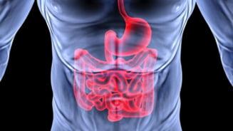 Secretul vindecarii cancerului sta in intestinele umane?