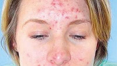 lupta cu acneea