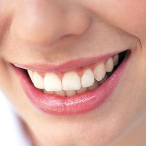 Sfaturi pentru dinti mai albi