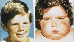 Sindromul Cushing, o boala rara - Ce spune medicul