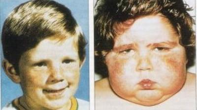 pierderea în greutate cu boala lui cushing)
