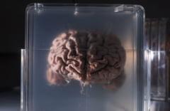 Specialistii vor sa creeze in laborator un creier. Ce are special acest experiment fara precedent