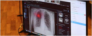 Spitalele din judetul Timis vor beneficia de un soft ce utilizeaza inteligenta artificiala