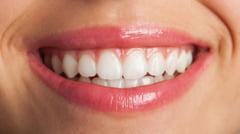 Stiai ca un implant dentar poate rezista toata viata? Iata cateva curiozitati legate de acest tratament revolutionar!