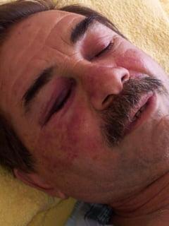 Timisoara: Un barbat acuza ca a fost batut de politisti pana a ajuns in spital