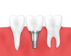 Tot ce trebuie sa stii inainte de realizarea unui implant dentar