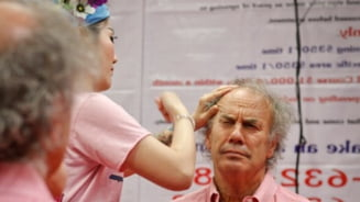 Tratament de frumusete: Palme peste fata, pentru 350 de dolari (Video)