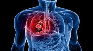 Tratament-minune impotriva cancerului pulmonar, gasit in SUA