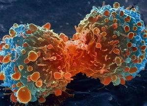 Tratament revolutionar care distruge cancerul, testat pe pacienti
