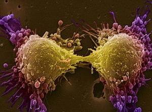 Tratament revolutionar contra cancerului: Un vaccin se testeaza pe pacienti (Video)