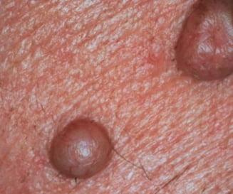 Tratamente cu rezultate promitatoare contra cancerului de piele