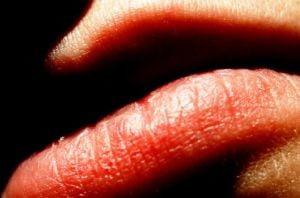 Tratamentele naturiste pot provoca alergii