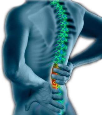 Tratati natural durerile de spate