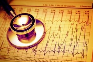 Tulburarile de ritm cardiac - Ce spune medicul
