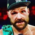 Tyson Fury ia o decizie surprinzatoare