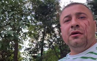 UPDATE Agresorii activistului alergat si batut in stil mafiot, retinuti. Victima se teme de o razbunare VIDEO