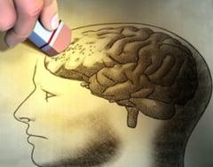 Un compus chimic inrudit cu aspirina i-ar putea ajuta pe bolnavii de Alzheimer