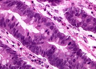 Un nou medicament pentru cancerul gastric