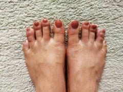 "Un nou simptom al COVID-19, semnalat tot mai des. Ce inseamna ""degetele de covid"" si cum se manifesta"
