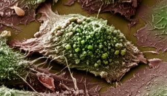 Un nou tratament al cancerului la plamani promite rezultate bune