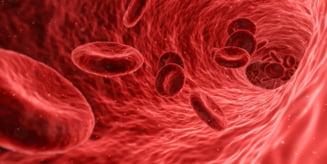 Un tratament experimental distruge celulele canceroase fara a folosi medicamente